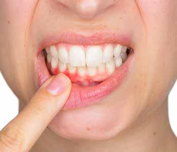 Gum Disease Treatments in Wichita Ks - Gum Disease Early ...