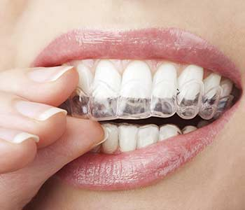 How Invisalign Works for You in Wichita KS area